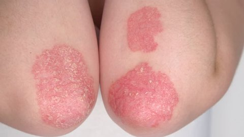 CLOSE UP: Detail of red scaly flaky dry abnormal skin on human elbows affected by psoriasis auto-immune disease. Patient suffering from psoriatic arthritis. Thickening plaques. Dermatological problems