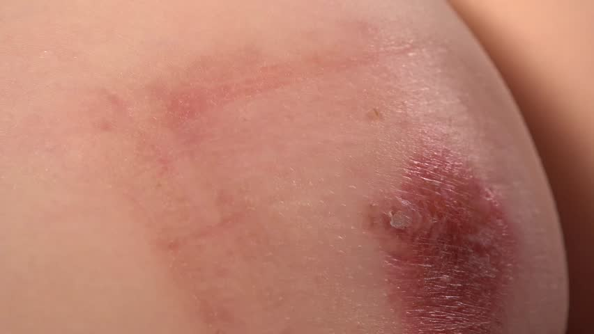 Close-up of doctor examining skin inflammation and abcess