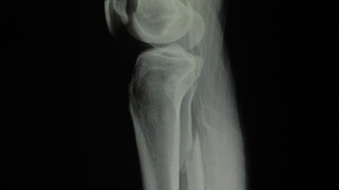 X-ray radiography of fibula bone leg fracture