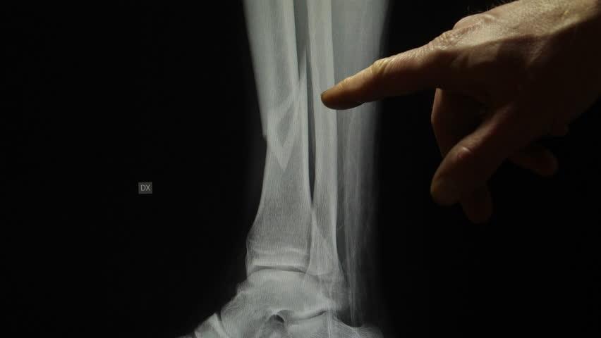 Header of fracture