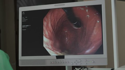 hospital, clinic, apparatus, body, cancer, colon, colonoscopy, device, diagnosis, diagnostic, distal, disease, endoscope, endoscopic, endoscopy, equipment, examination, examining, gastric, gastro, gas