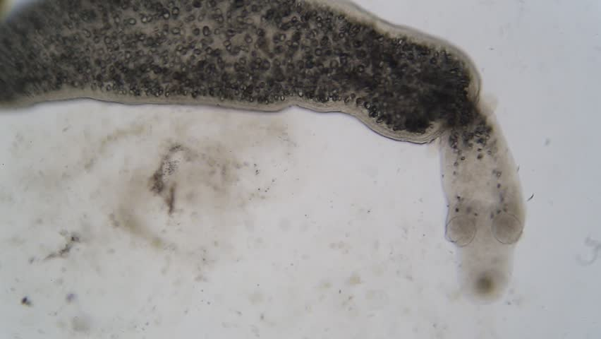 Tapeworm infection is the infestation of the digestive tract by a species of parasitic flatworm, called tapeworms under the microscope for education in Lab.