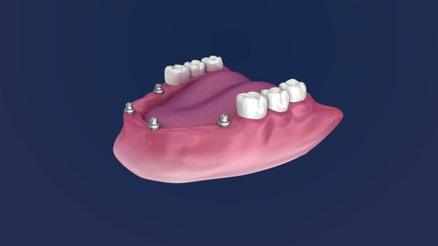 Overdenture to be seated on 4 implants - ball attachments. 3D Animation.