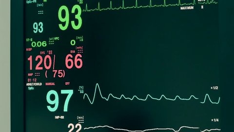 Monitor vital sign and EKG  monitor in ICU unit ,it show The waves of blood pressure, blood oxygen saturation, ECG,heart rate,respiratory rate.