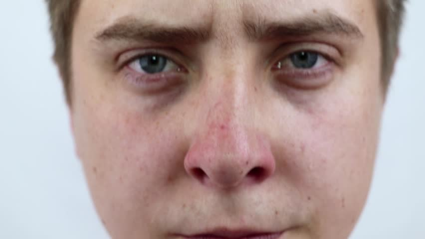 Closeup portrait young man looking at the camera, squeezing acne or blackheads on the nose. Close-up as background for the hygiene of the face and nose. Dermatology and skin problems. Oily skin face