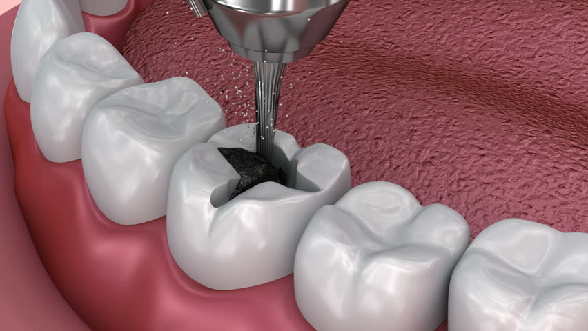 Caries removal, Dental fissure fillings, Medically accurate 3D illustration