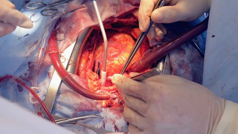 Real heart beats through open chest during surgery. 4K.