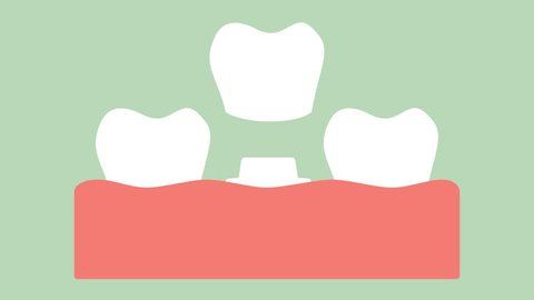 dental crown, installation process and change of teeth - tooth cartoon vector flat style render 2d footage animation, in 4K and UHD ultra high definition video format 3840x2160