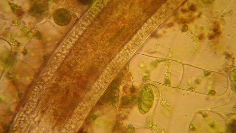 Fresh pond water plankton and algae at the microscope. Nematode