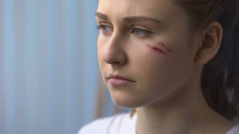 Doctor treating wound on female patient face after car accident, first aid