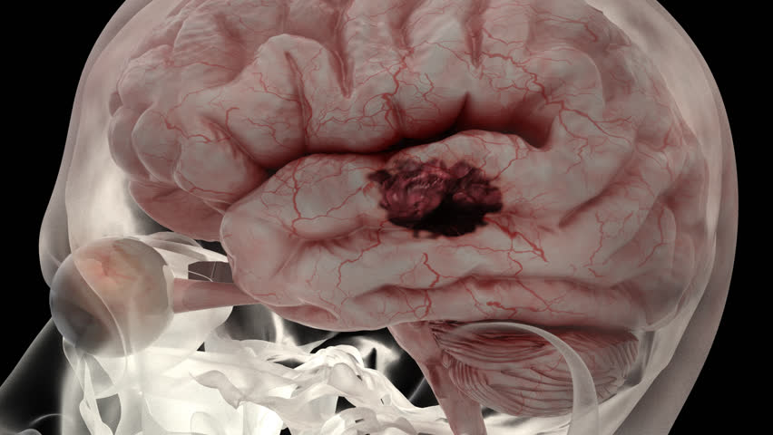 Brain stroke simulation, 3d animation of apoplexy, Insult X-ray