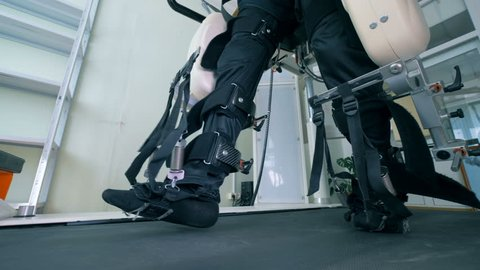 Patient's legs in a special prosthesis, close up.