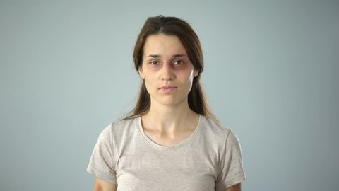 Bruised female holding no is no sign, putting end to violence against women