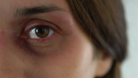 Bruised sad woman eye, terrified face of domestic violence victim close-up