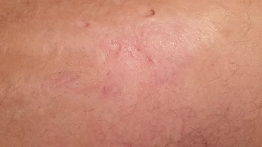 Burns on the human body.Scar from burns on the body. Wounds on the body. | Shutterstock HD Video #1022713426