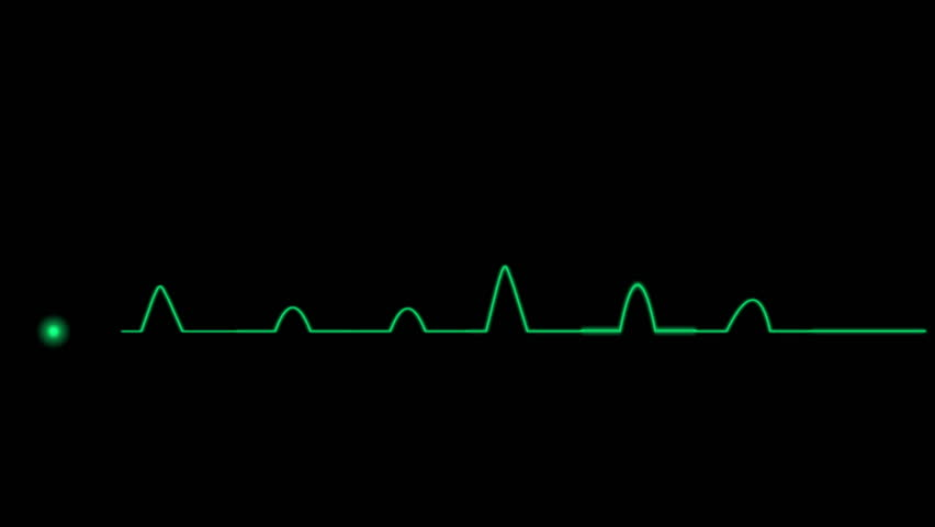 4k ECG Cardiovascular heart monitor showing heartbeat pulse. 0876_4k