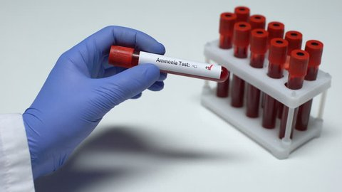 Positive Ammonia test, doctor showing blood sample in tube, lab research, health