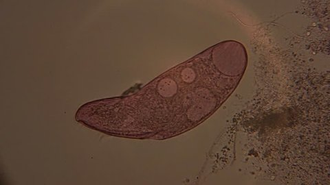 A microscopic view of the single-celled organism, Blepharisma.