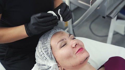 Close up cosmetologist cleans woman skin with wet cotton pads from black mask after laser peeling. Face care procedure