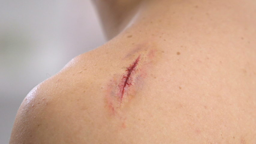 Nurse applying adhesive bandage on scratched shoulder, knife wound, close-up | Shutterstock HD Video #1030160576