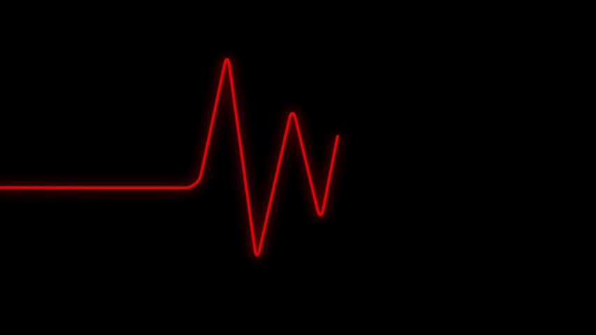ECG also known as EKG (electrocardiogram) waveform animated on a screen, computer generated seamless loop rendered with Shallow DOF, shows the BPM rate changes.   Shutterstock HD Video #1035484856