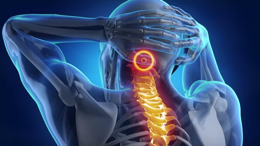 При инсульте боли в позвоночнике