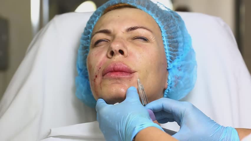 Cosmetic treatment with injection in a clinic | Shutterstock HD Video #11897216