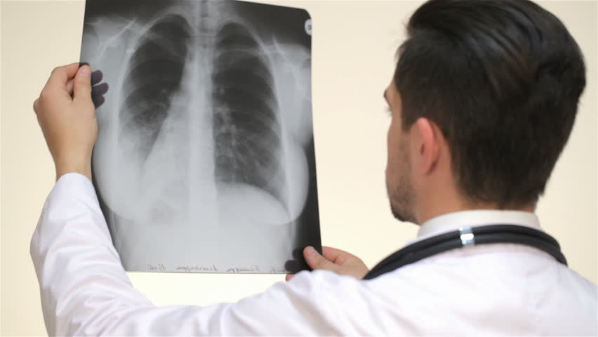 Stock video of a doctor examines an x-ray | 12509444 | Shutterstock