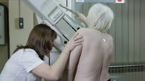 Radiology nurse performing the breast mammography at elderly woman in consulting room, mammogram diagnostic, medical examination in the hospital room, close up, no color grading, raw video, indoors.