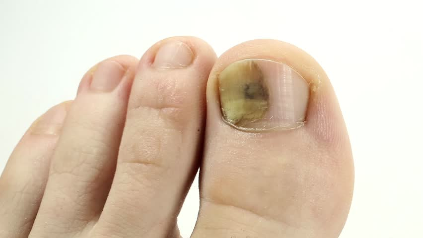 Trauma of toenail. Toenails with fungal infection. Fungi Toes. Fungus ...