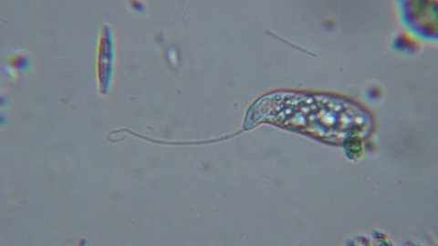Microscopic protozoa or amoeba with flagella.