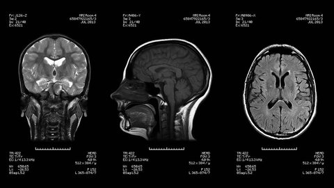Three head views of MRI scan. Loopable. Black and White. Medical exam. See more color options in my portfolio.
