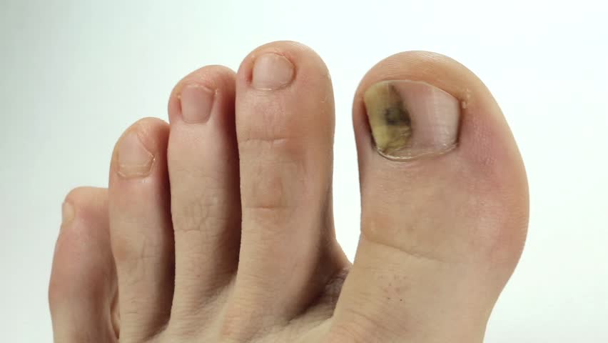 hd00:30Toenails with fungal infection. Sick nail. Fungus of big toe ...