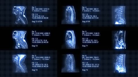 4k blue Medical Background. Video showing MRI, charts, numbers and data animations. Loopable.