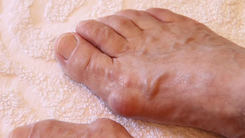 Valgus Deformity Of Female Legs Stockvideos Filmmaterial 100