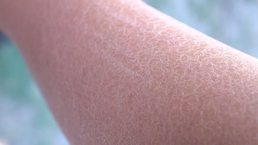 CLOSE UP, DOF, MACRO: Dehydrated, dry, flaky, cracked human skin on young Caucasian woman. Cold, wind and sun caused extreme dryness of outer layer of skin tissue on young woman arm