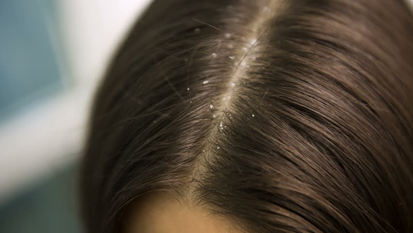 Image result for hair trouble woman dandruff