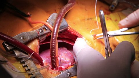 Open heart surgery closeup with surgeon sews the membrane to a skin (1080p, 25fps)