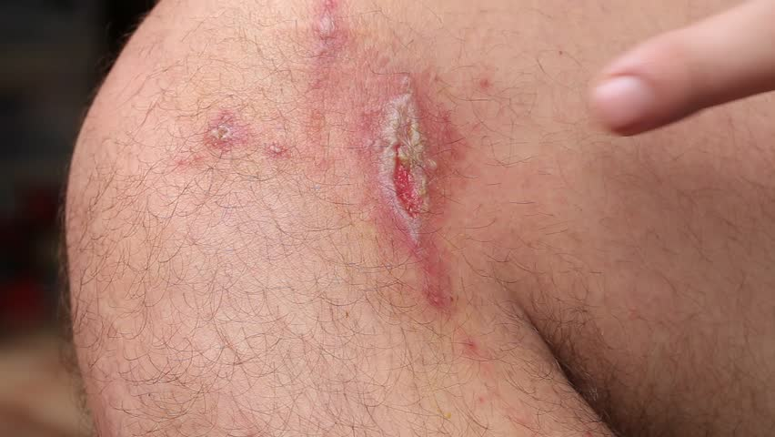 Irritant contact dermatitis at man leg, close up.. Pederus-dermatitis - Allergic reaction to the blood type of beetles Paederus, characterized by vesicular dermatitis | Shutterstock HD Video #22679986