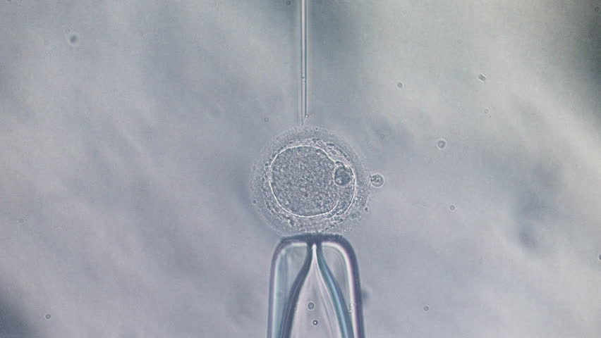 Microscope view of in vitro fertilization IntraCytoplasmic Sperm Injection, ivf icsi