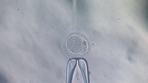 Microscope view of in vitro fertilization IntraCytoplasmic Sperm Injection, ivf icsi