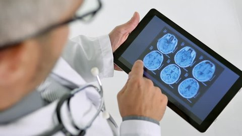 doctor looking at brain x rays scan on tablet top view from above