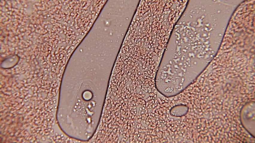 Blood Cell Channel 100x (HD 60p). Blood Platelets seen forming a small pathway at 100x magnification with the aid of a halogen bacteriological microscope.