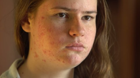 Teenage girl with the problem of acne during puberty, looks at herself in the mirror. Close-up