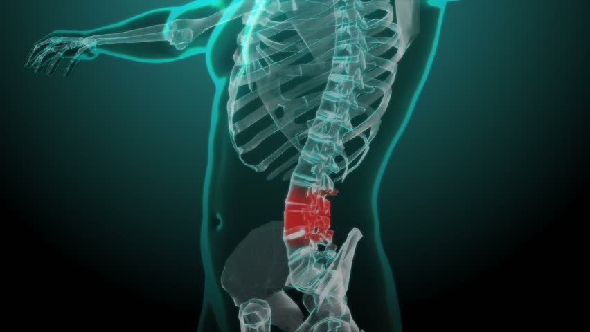 X-ray Skeleton Animation of Lower Stock Footage Video (100% Royalty-free)  25036076 | Shutterstock