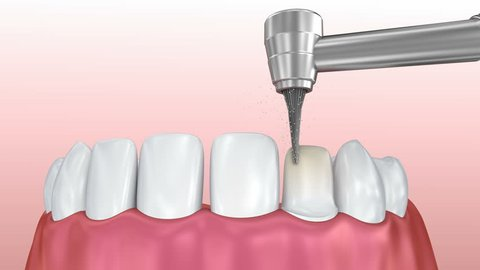 Dental Veneers: Porcelain Veneer installation Procedure. 3D animation