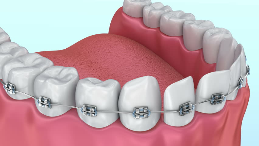 Teeth with braces Alignment process. Medically accurate 3D animation.