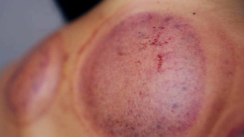 Skin After Traditional Chinese Medicine – Cupping process. Female back After Hijamah Cups in Acupuncture therapy. Chinese Traditional  treatment. Medical cupping therapy equipment | Shutterstock HD Video #26123966
