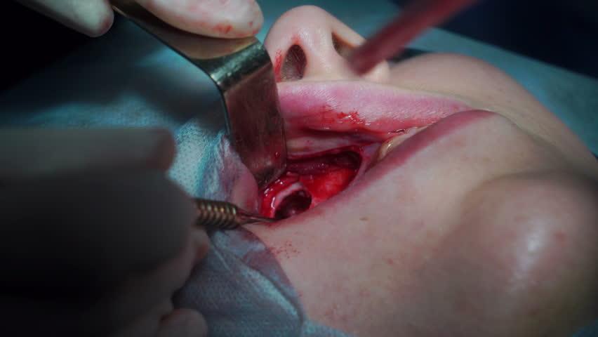 Header of maxillary