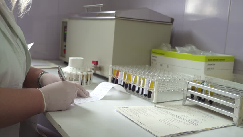 Dolly shot from the hands of technician during takes blood samples and writing results to the rack with test tubes, focus change, shallow depth of field, lab analysis, room interior   Shutterstock HD Video #27055876